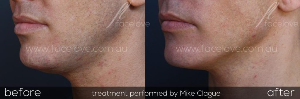 How to get rid of double chin fat