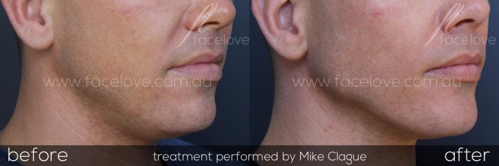 How to get rid of double chin fat Melbourne