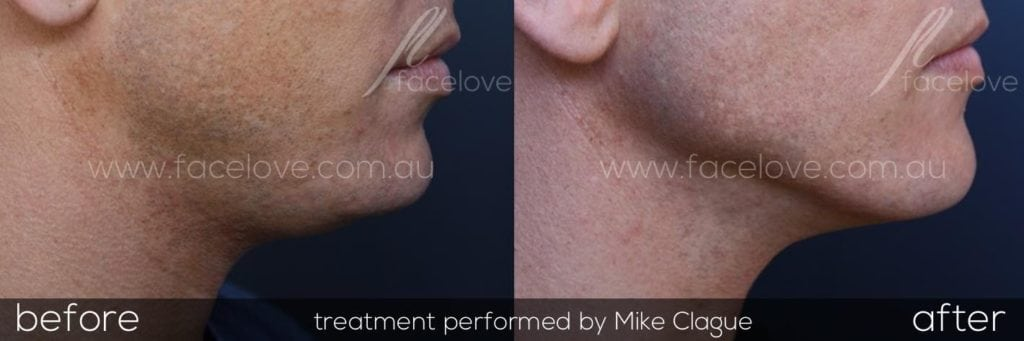 Male double chine fat dissolving injections melbourne