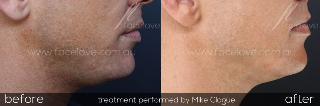 Male double chin fat dissolving injections Melbourne