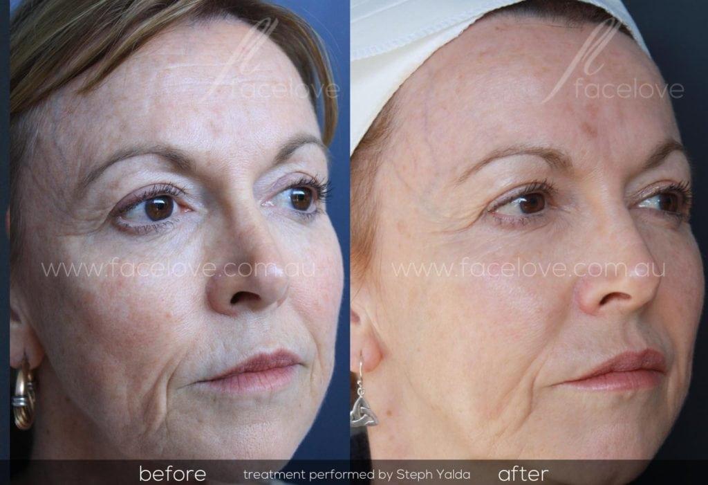 Secret RF Skin Needling Treatment Facelove