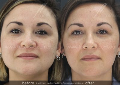 Before and After Facial Slimming