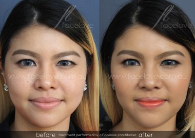 Before and After Facial Slimming Facelove 2