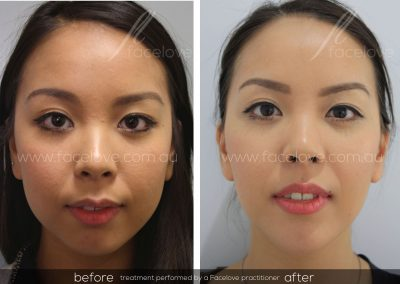 Before and After Facial Slimming Facelove 4