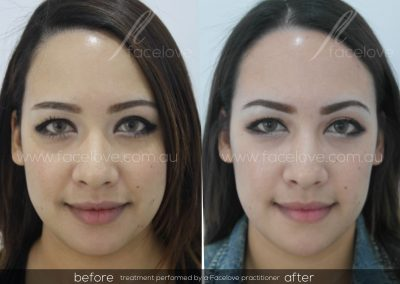 Before and After Facial Slimming Facelove
