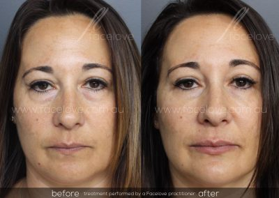 Before and After Female tear trough treatment at Facelove