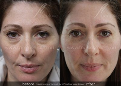 Before and After Female under eye bag treatment at Facelove