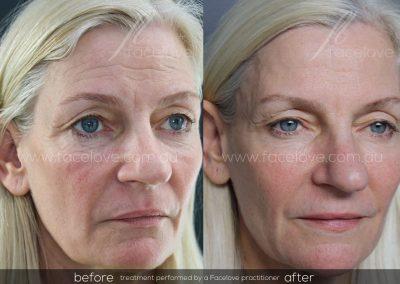 Dermal Filler Before and After Female