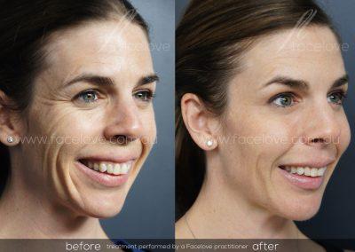 Dermal Filler Female 45 Before and After at Facelove