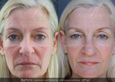 Dermal Filler Female Before and After