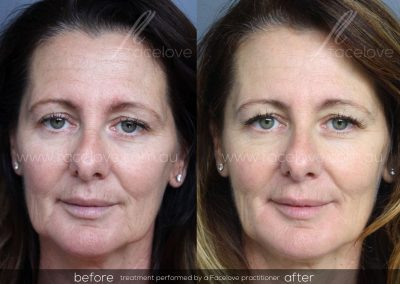 Dermal Filler Female Before and After Facelove