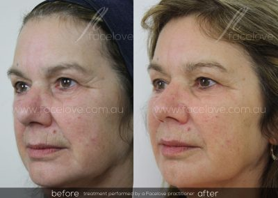 Dermal Filler Female Before and After at Facelove