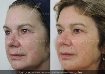 Dermal Filler Female Before and After at Facelove