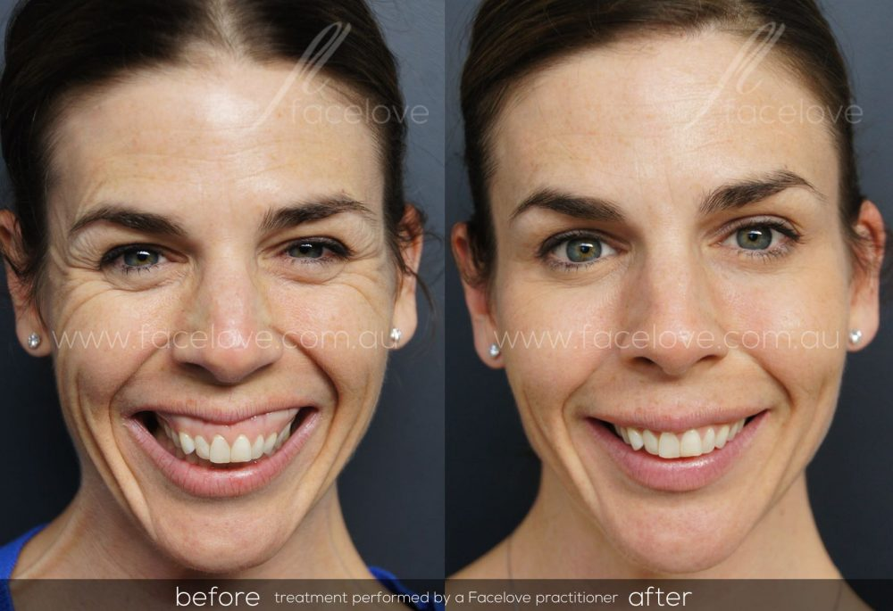 Anti-wrinkle Injections Melbourne - Facelove