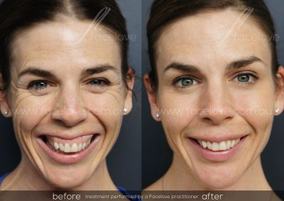 Dermal Filler and Anti-wrinkle Female Natural Look Before and After at Facelove