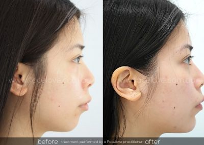 Dermal Filler in Chin Side Before and After Female at Facelove