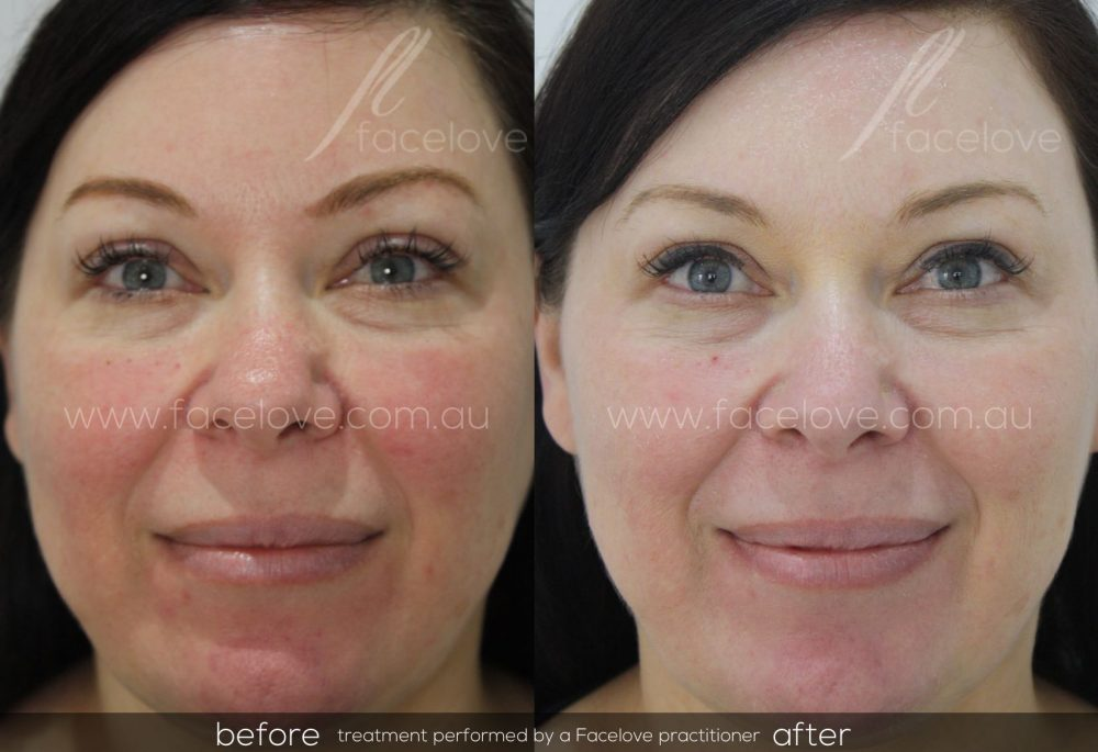 Capillary Facial Redness Reduction - Facelove