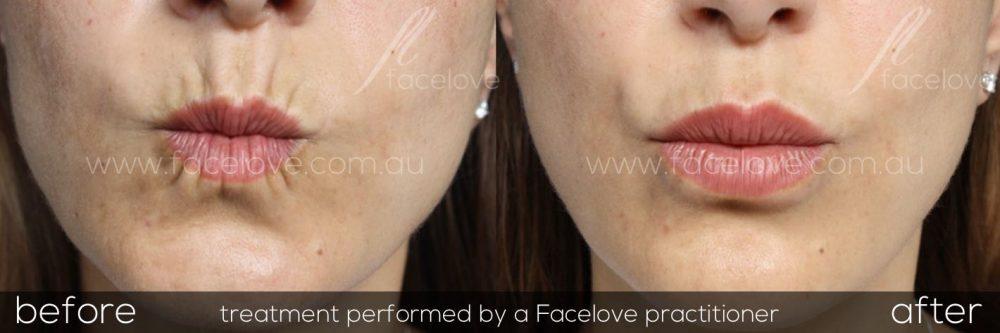 Lip Lines Treatment - Facelove