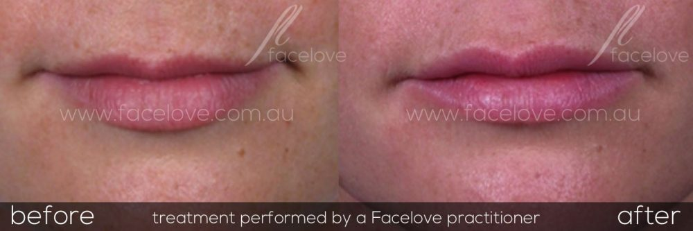 Lip Fillers Melbourne - Facelove