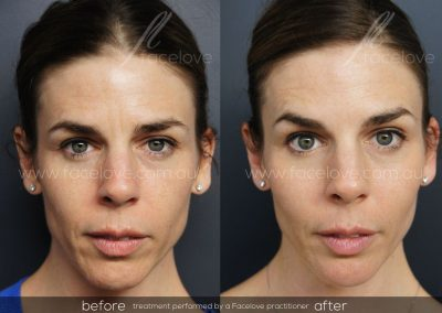 Liquid Lift Dermal Filler and Anti-wrinkle Female Before and After at Facelove