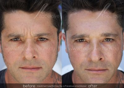 Male Frown Line treatment Before and After