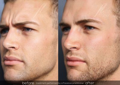 Male Frown Line treatment Before and After at Facelove 2