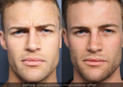 Male Frown Line treatment Before and After at Facelove 3