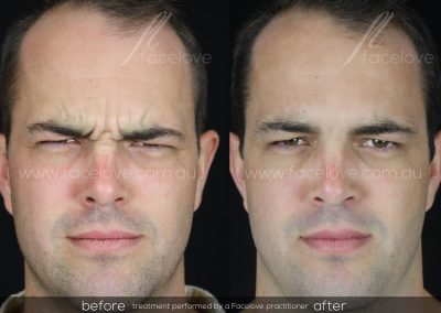 Male Frown Line treatment Before and After at Facelove 4