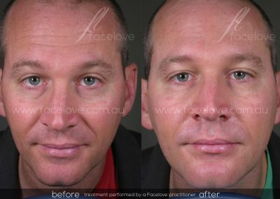 Male Nasolabial lines treatment Before and After at Facelove