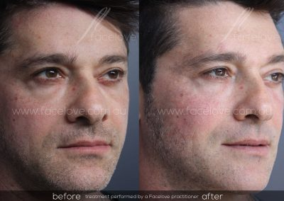 Male tear trough treatment Before and After at Facelove